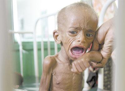 <b>FOME:</b> Menino desnutrido em hospital de Mogadício, na Somália